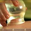 زهرة الحجامة سنّة نبوية ومعجزة طبية
